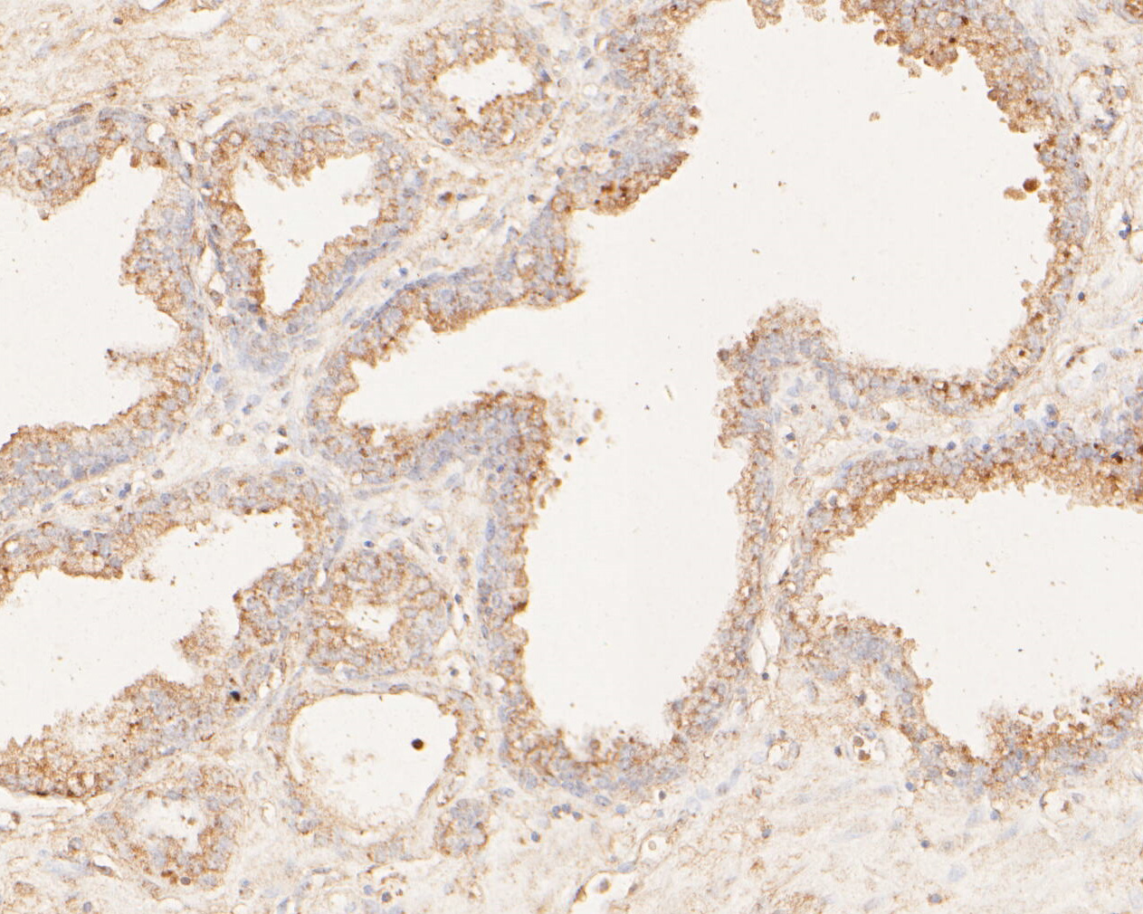 Immunohistochemical analysis of paraffin-embedded human prostate carcinoma tissue using anti-MAGT1 antibody. The section was pre-treated using heat mediated antigen retrieval with Tris-EDTA buffer (pH 8.0-8.4) for 20 minutes.The tissues were blocked in 5% BSA for 30 minutes at room temperature, washed with ddH2O and PBS, and then probed with the primary antibody (ER1902-99, 1/50) for 30 minutes at room temperature. The detection was performed using an HRP conjugated compact polymer system. DAB was used as the chromogen. Tissues were counterstained with hematoxylin and mounted with DPX.
