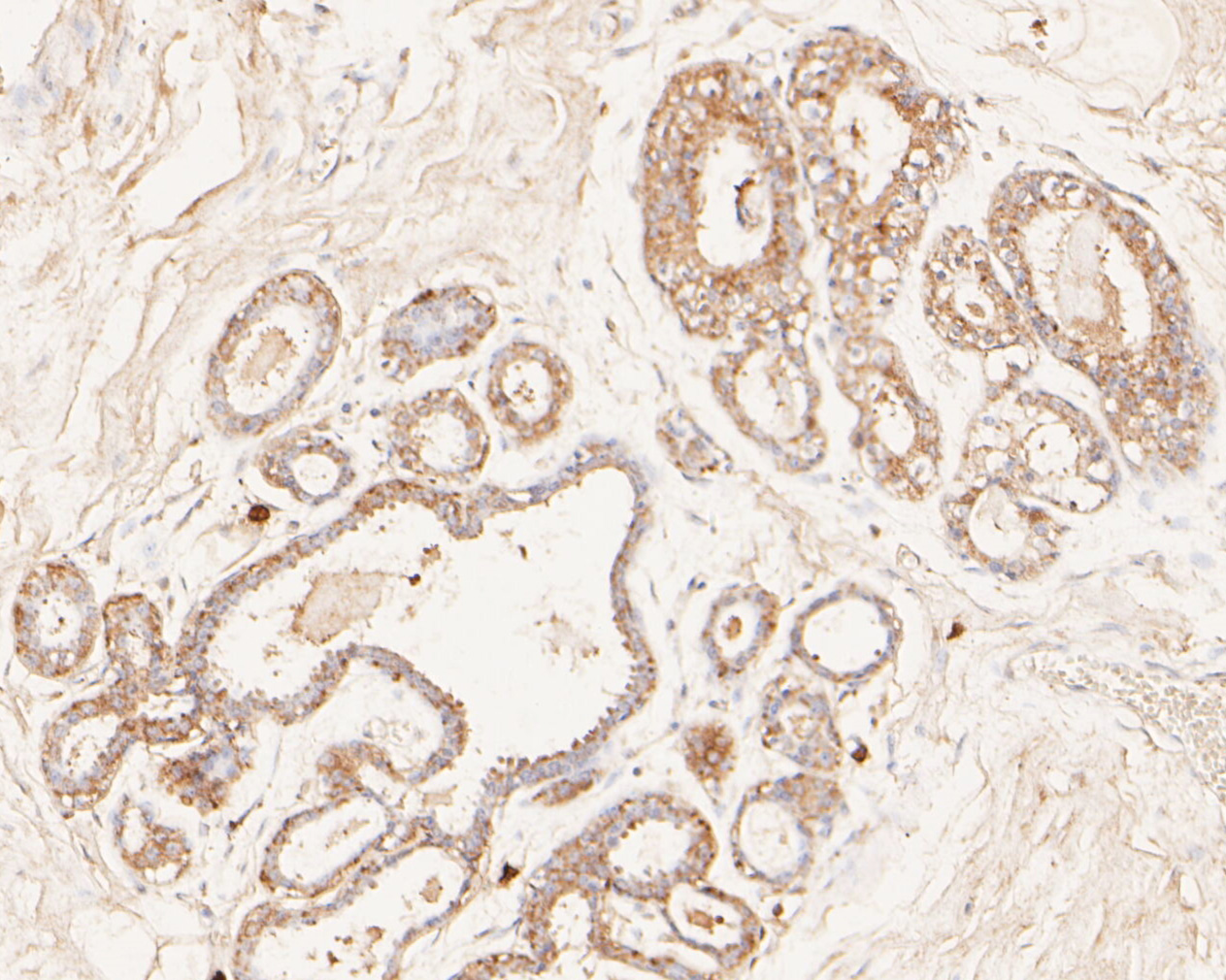 Immunohistochemical analysis of paraffin-embedded human breast tissue using anti-MAGT1 antibody. The section was pre-treated using heat mediated antigen retrieval with Tris-EDTA buffer (pH 8.0-8.4) for 20 minutes.The tissues were blocked in 5% BSA for 30 minutes at room temperature, washed with ddH2O and PBS, and then probed with the primary antibody (ER1902-99, 1/50) for 30 minutes at room temperature. The detection was performed using an HRP conjugated compact polymer system. DAB was used as the chromogen. Tissues were counterstained with hematoxylin and mounted with DPX.