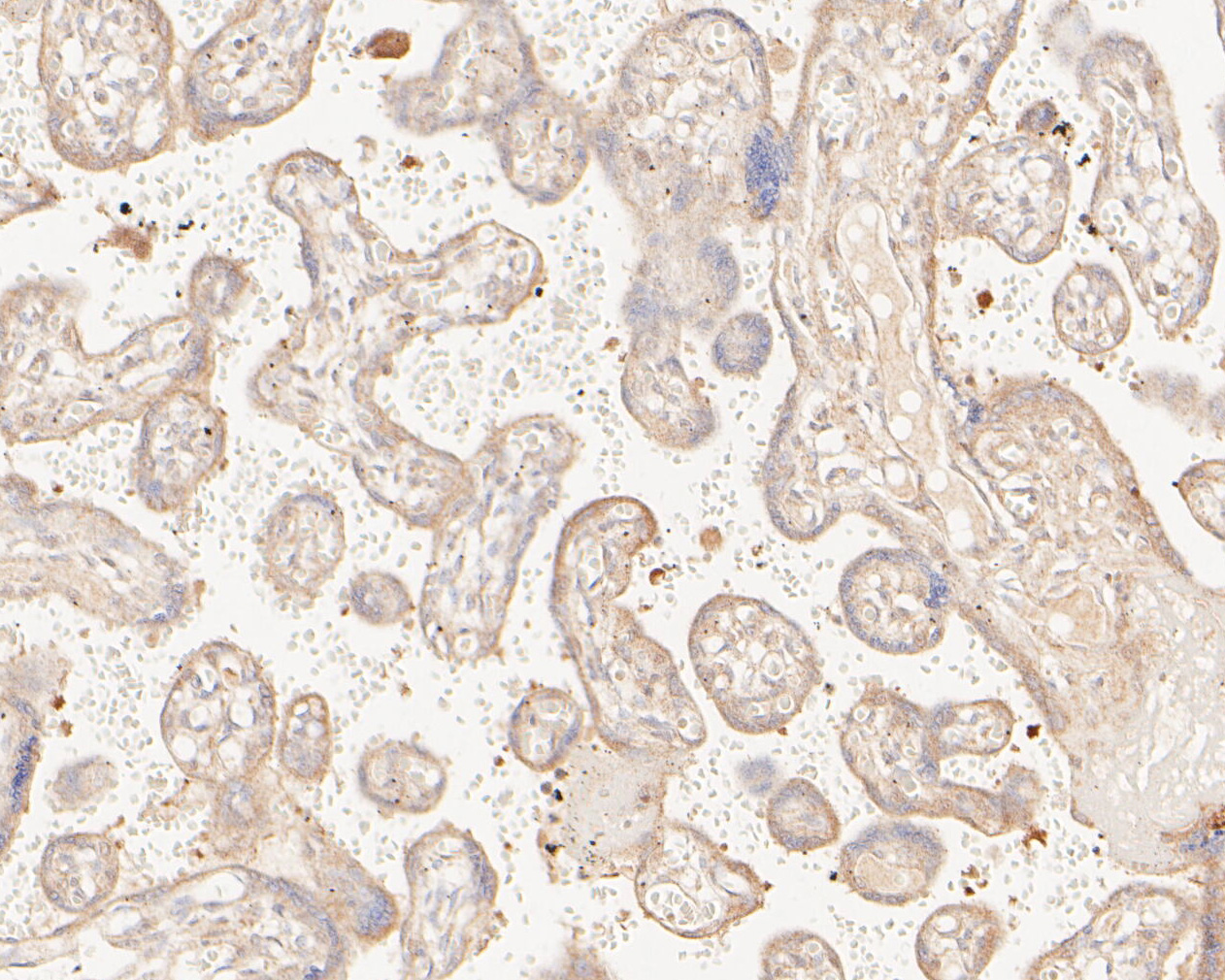 Immunohistochemical analysis of paraffin-embedded human placenta tissue using anti-MAGT1 antibody. The section was pre-treated using heat mediated antigen retrieval with Tris-EDTA buffer (pH 8.0-8.4) for 20 minutes.The tissues were blocked in 5% BSA for 30 minutes at room temperature, washed with ddH2O and PBS, and then probed with the primary antibody (ER1902-99, 1/200) for 30 minutes at room temperature. The detection was performed using an HRP conjugated compact polymer system. DAB was used as the chromogen. Tissues were counterstained with hematoxylin and mounted with DPX.