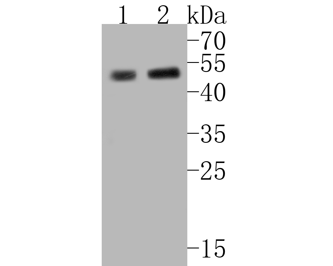 Western blot analysis of MFF on different lysates. Proteins were transferred to a PVDF membrane and blocked with 5% BSA in PBS for 1 hour at room temperature. The primary antibody (ER2001-01, 1/500) was used in 5% BSA at room temperature for 2 hours. Goat Anti-Rabbit IgG - HRP Secondary Antibody (HA1001) at 1:5,000 dilution was used for 1 hour at room temperature.<br /> Positive control: <br /> Lane 1: HepG2 cell lysate<br /> Lane 2: SiHa cell lysate