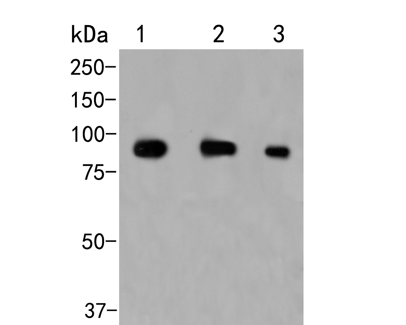 Western blot analysis of CD180 on different lysates. Proteins were transferred to a PVDF membrane and blocked with 5% BSA in PBS for 1 hour at room temperature. The primary antibody (ER2001-06, 1/500) was used in 5% BSA at room temperature for 2 hours. Goat Anti-Rabbit IgG - HRP Secondary Antibody (HA1001) at 1:5,000 dilution was used for 1 hour at room temperature.<br /> Positive control: <br /> Lane 1: Daudi cell lysate<br /> Lane 2: Rat spleen tissue lysate<br /> Lane 3: Mouse spleen tissue lysate