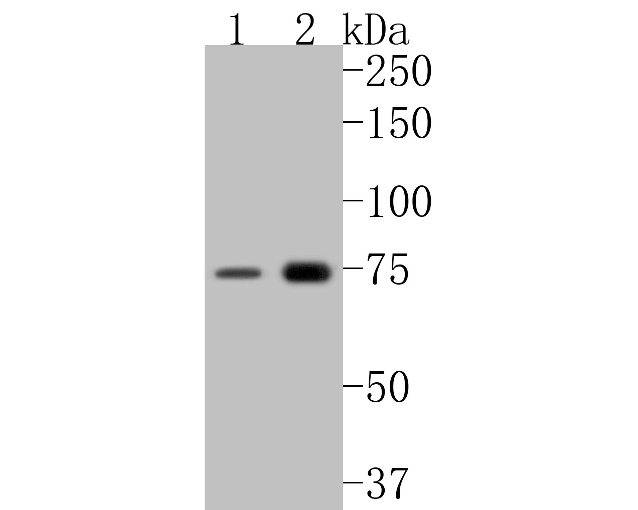 Western blot analysis of GBP2 on different lysates. Proteins were transferred to a PVDF membrane and blocked with 5% BSA in PBS for 1 hour at room temperature. The primary antibody (ER2001-12, 1/500) was used in 5% BSA at room temperature for 2 hours. Goat Anti-Rabbit IgG - HRP Secondary Antibody (HA1001) at 1:5,000 dilution was used for 1 hour at room temperature.<br /> Positive control: <br /> Lane 1: SiHa cell lysate<br /> Lane 2: human lung tissue lysate