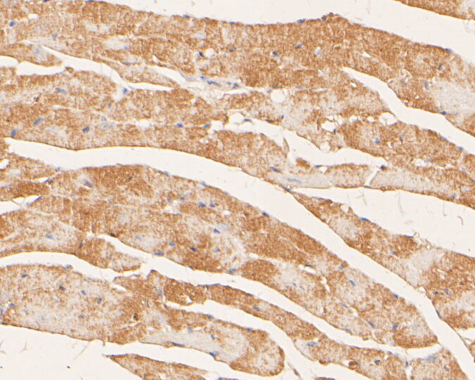 Immunohistochemical analysis of paraffin-embedded mouse heart tissue using anti-Myomegalin antibody. The section was pre-treated using heat mediated antigen retrieval with Tris-EDTA buffer (pH 8.0-8.4) for 20 minutes.The tissues were blocked in 5% BSA for 30 minutes at room temperature, washed with ddH2O and PBS, and then probed with the primary antibody (ER2001-16, 1/100) for 30 minutes at room temperature. The detection was performed using an HRP conjugated compact polymer system. DAB was used as the chromogen. Tissues were counterstained with hematoxylin and mounted with DPX.