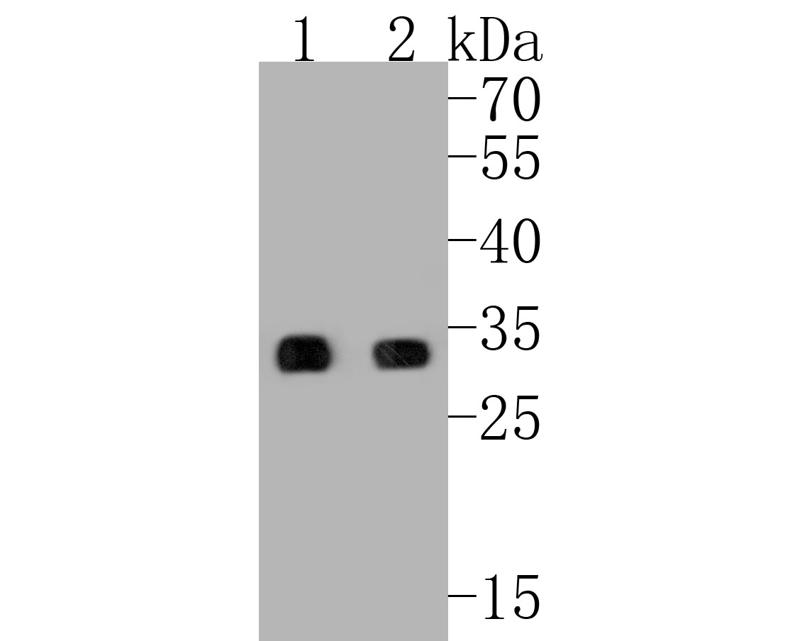 Western blot analysis of PYCR1 on different lysates. Proteins were transferred to a PVDF membrane and blocked with 5% BSA in PBS for 1 hour at room temperature. The primary antibody (ER2001-18, 1/500) was used in 5% BSA at room temperature for 2 hours. Goat Anti-Rabbit IgG - HRP Secondary Antibody (HA1001) at 1:5,000 dilution was used for 1 hour at room temperature.<br />  Positive control: <br />  Lane 1: SK-Br-3 cell lysate<br />  Lane 2: K562 cell lysate
