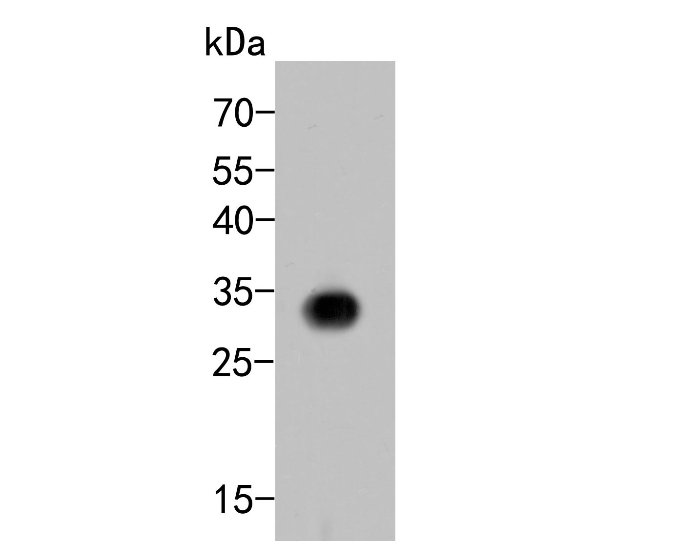 Western blot analysis of CD8 alpha on Siha cell lysates. Proteins were transferred to a PVDF membrane and blocked with 5% BSA in PBS for 1 hour at room temperature. The primary antibody (ER2001-19, 1/500) was used in 5% BSA at room temperature for 2 hours. Goat Anti-Rabbit IgG - HRP Secondary Antibody (HA1001) at 1:5,000 dilution was used for 1 hour at room temperature.
