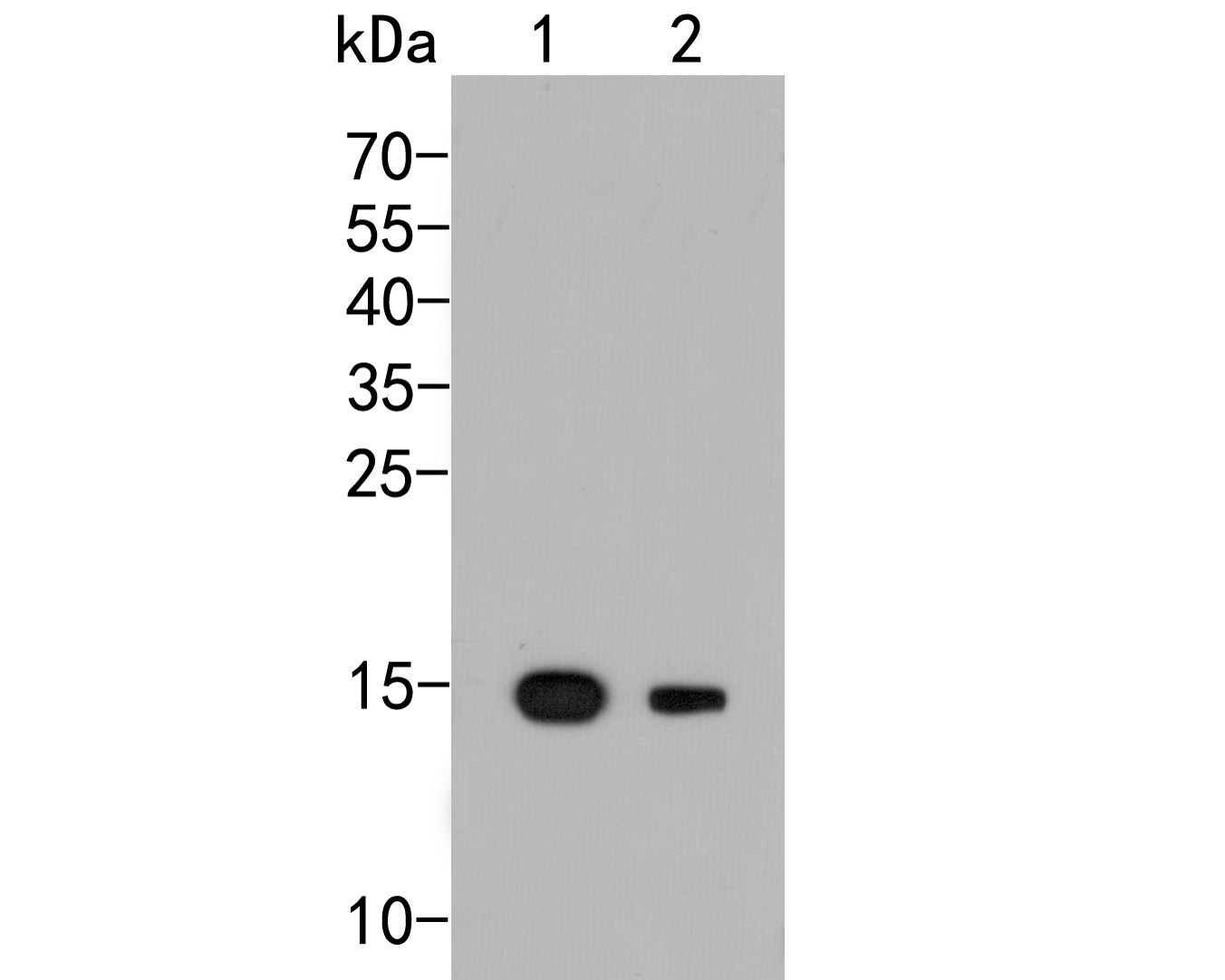 Western blot analysis of GOLGA7 on different lysates. Proteins were transferred to a PVDF membrane and blocked with 5% BSA in PBS for 1 hour at room temperature. The primary antibody (ER2001-22, 1/500) was used in 5% BSA at room temperature for 2 hours. Goat Anti-Rabbit IgG - HRP Secondary Antibody (HA1001) at 1:5,000 dilution was used for 1 hour at room temperature.<br /> Positive control: <br /> Lane 1: Human stomach tissue lysate<br /> Lane 2: A431 cell lysate