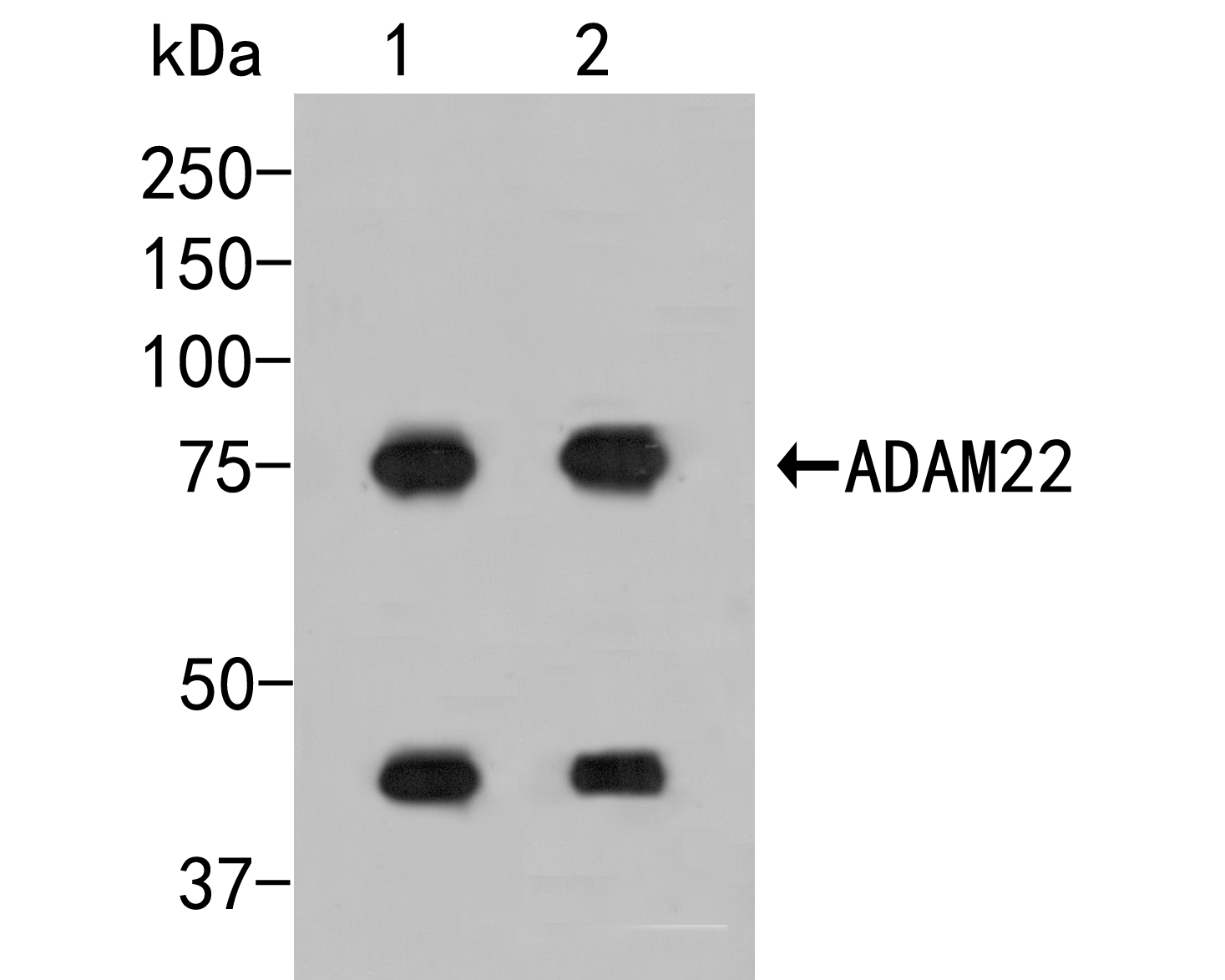 Western blot analysis of ADAM22 on different lysates. Proteins were transferred to a PVDF membrane and blocked with 5% BSA in PBS for 1 hour at room temperature. The primary antibody (ER2001-24, 1/500) was used in 5% BSA at room temperature for 2 hours. Goat Anti-Rabbit IgG - HRP Secondary Antibody (HA1001) at 1:5,000 dilution was used for 1 hour at room temperature.<br /> Positive control: <br /> Lane 1: Mouse cerebellum tissue lysate<br /> Lane 2: Rat brain tissue tissue lysate