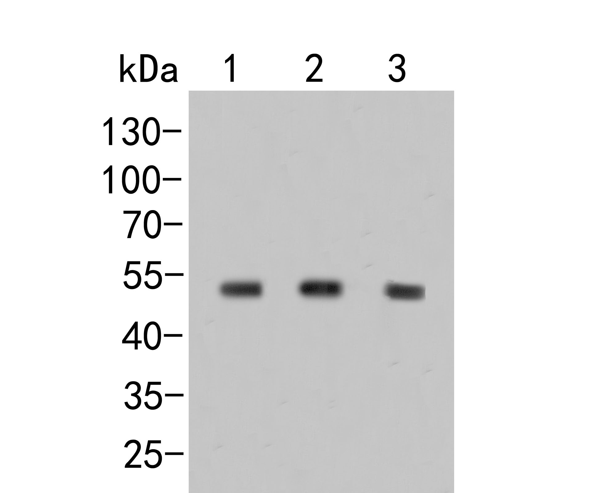 Western blot analysis of Dysbindin on different lysates. Proteins were transferred to a PVDF membrane and blocked with 5% BSA in PBS for 1 hour at room temperature. The primary antibody (ER2001-26, 1/500) was used in 5% BSA at room temperature for 2 hours. Goat Anti-Rabbit IgG - HRP Secondary Antibody (HA1001) at 1:5,000 dilution was used for 1 hour at room temperature.<br /> Positive control: <br /> Lane 1: Daudi cell lysate<br /> Lane 2: MCF-7 cell lysate<br /> Lane 3: HL-60 cell lysate