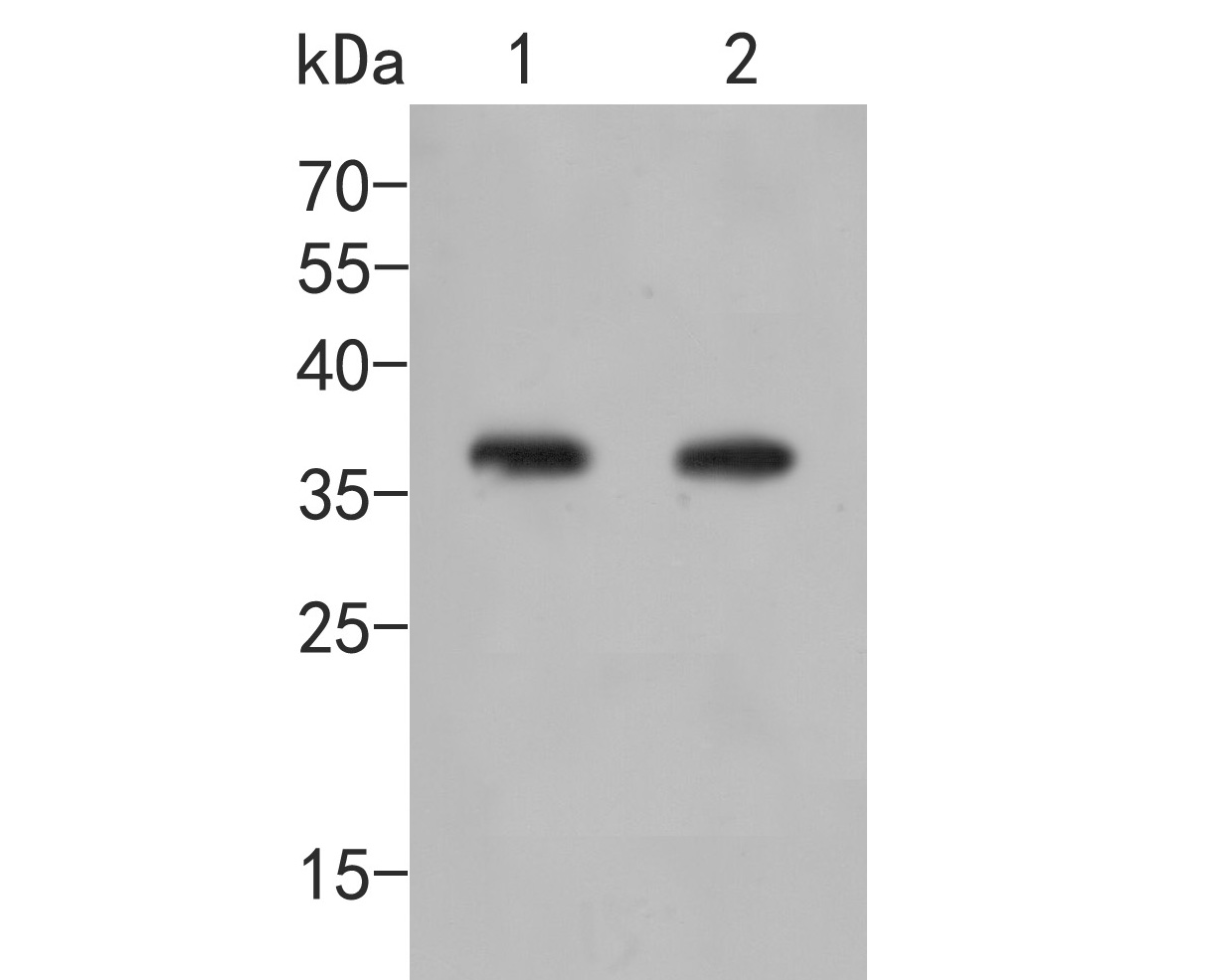 Western blot analysis of AKR1B1 on different lysates. Proteins were transferred to a PVDF membrane and blocked with 5% BSA in PBS for 1 hour at room temperature. The primary antibody (ER2001-27, 1/500) was used in 5% BSA at room temperature for 2 hours. Goat Anti-Rabbit IgG - HRP Secondary Antibody (HA1001) at 1:5,000 dilution was used for 1 hour at room temperature.<br /> Positive control: <br /> Lane 1: Rat skeletal muscle tissue lysate<br /> Lane 2: A549 cell lysate