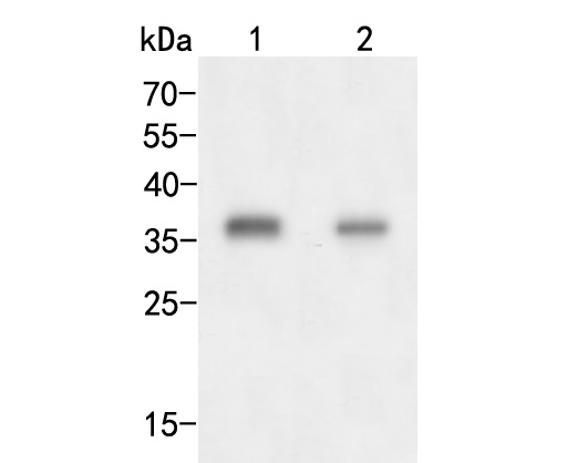 Western blot analysis of AKR1B1 on different lysates. Proteins were transferred to a PVDF membrane and blocked with 5% BSA in PBS for 1 hour at room temperature. The primary antibody (ER2001-28, 1/500) was used in 5% BSA at room temperature for 2 hours. Goat Anti-Rabbit IgG - HRP Secondary Antibody (HA1001) at 1:5,000 dilution was used for 1 hour at room temperature.<br /> Positive control: <br /> Lane 1: A549 cell lysate<br /> Lane 2: Siha cell lysate
