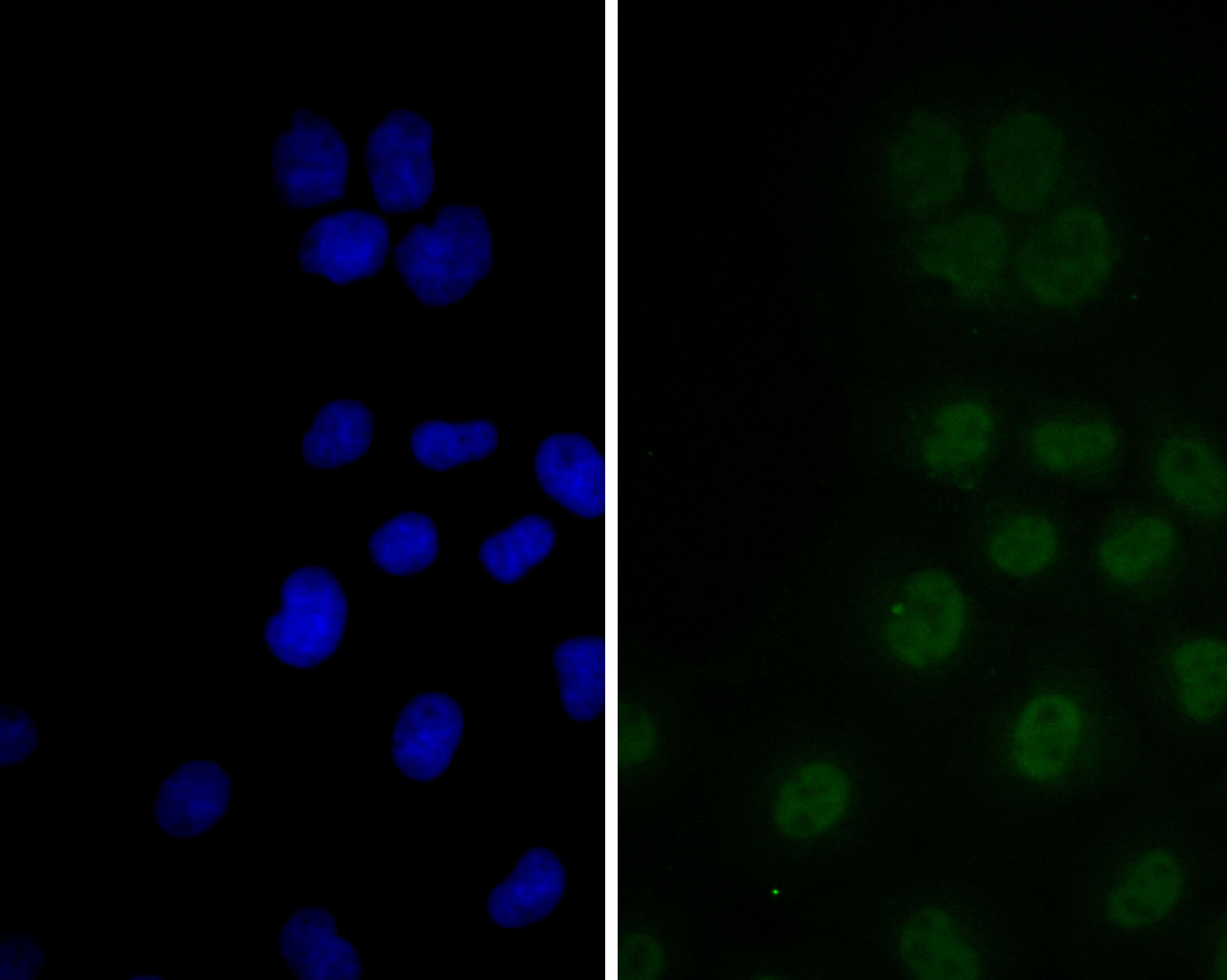 ICC staining of CDKN2A/p16INK4a in JAR cells (green). Formalin fixed cells were permeabilized with 0.1% Triton X-100 in TBS for 10 minutes at room temperature and blocked with 1% Blocker BSA for 15 minutes at room temperature. Cells were probed with the primary antibody (ER2001-30, 1/100) for 1 hour at room temperature, washed with PBS. Alexa Fluor®488 Goat anti-Rabbit IgG was used as the secondary antibody at 1/100 dilution. The nuclear counter stain is DAPI (blue).