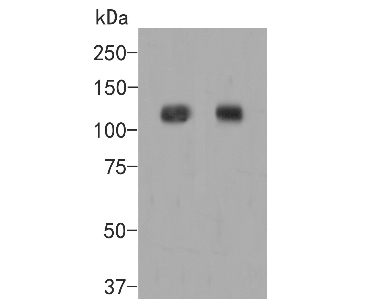 Western blot analysis of EPHA2 on different lysates. Proteins were transferred to a PVDF membrane and blocked with 5% BSA in PBS for 1 hour at room temperature. The primary antibody (ER2001-31, 1/500) was used in 5% BSA at room temperature for 2 hours. Goat Anti-Rabbit IgG - HRP Secondary Antibody (HA1001) at 1:5,000 dilution was used for 1 hour at room temperature.<br /> Positive control: <br /> Lane 1: A549 cell lysate<br /> Lane 2: PC-3M cell lysate