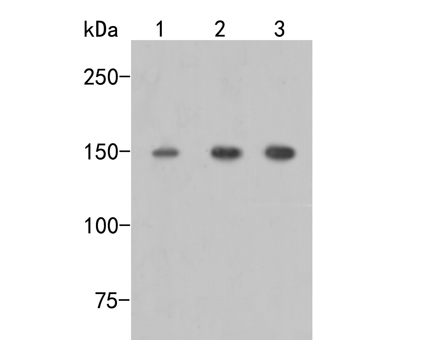 Western blot analysis of mSin3A on different lysates. Proteins were transferred to a PVDF membrane and blocked with 5% BSA in PBS for 1 hour at room temperature. The primary antibody (ER2001-38, 1/500) was used in 5% BSA at room temperature for 2 hours. Goat Anti-Rabbit IgG - HRP Secondary Antibody (HA1001) at 1:5,000 dilution was used for 1 hour at room temperature.<br />  Positive control: <br />  Lane 1: HL-60 cell lysate<br />  Lane 2: A549 cell lysate<br />  Lane 3: Siha cell lysate