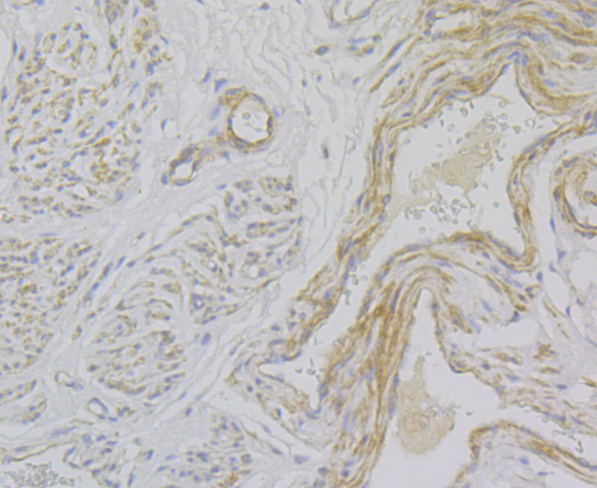Immunohistochemical analysis of paraffin-embedded human uterine fibroids tissue using anti-Smoothelin antibody. The section was pre-treated using heat mediated antigen retrieval with sodium citrate buffer (pH 6.0) for 20 mins. The tissues were blocked in 5% BSA for 30 minutes at room temperature, washed with ddH2O and PBS, and then probed with the antibody (ER2001-40) at 1/50 dilution, for 30 minutes at room temperature and detected using an HRP conjugated compact polymer system. DAB was used as the chrogen. Counter stained with hematoxylin and mounted with DPX.