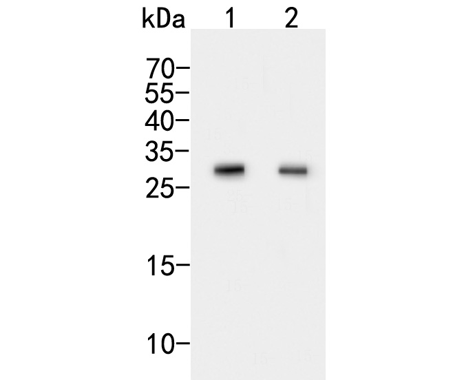 Western blot analysis of CLIC2 on different lysates. Proteins were transferred to a PVDF membrane and blocked with 5% BSA in PBS for 1 hour at room temperature. The primary antibody (ER2001-41, 1/500) was used in 5% BSA at room temperature for 2 hours. Goat Anti-Rabbit IgG - HRP Secondary Antibody (HA1001) at 1:5,000 dilution was used for 1 hour at room temperature.<br />  Positive control: <br />  Lane 1: K562 cell lysate<br />  Lane 2: Mouse lung tissue lysate