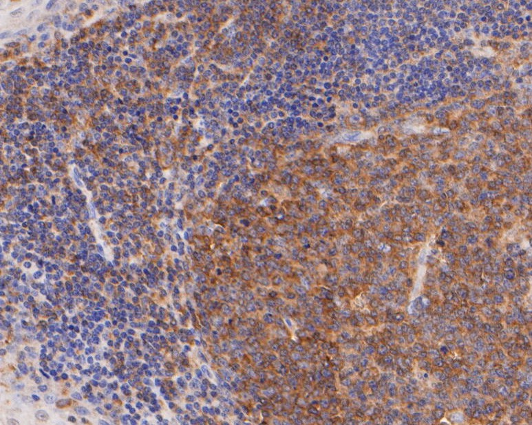 Immunohistochemical analysis of paraffin-embedded human tonsils tissue using anti-CD28 antibody. The section was pre-treated using heat mediated antigen retrieval with Tris-EDTA buffer (pH 8.0-8.4) for 20 minutes.The tissues were blocked in 5% BSA for 30 minutes at room temperature, washed with ddH2O and PBS, and then probed with the primary antibody (ER2001-42, 1/400) for 30 minutes at room temperature. The detection was performed using an HRP conjugated compact polymer system. DAB was used as the chromogen. Tissues were counterstained with hematoxylin and mounted with DPX.