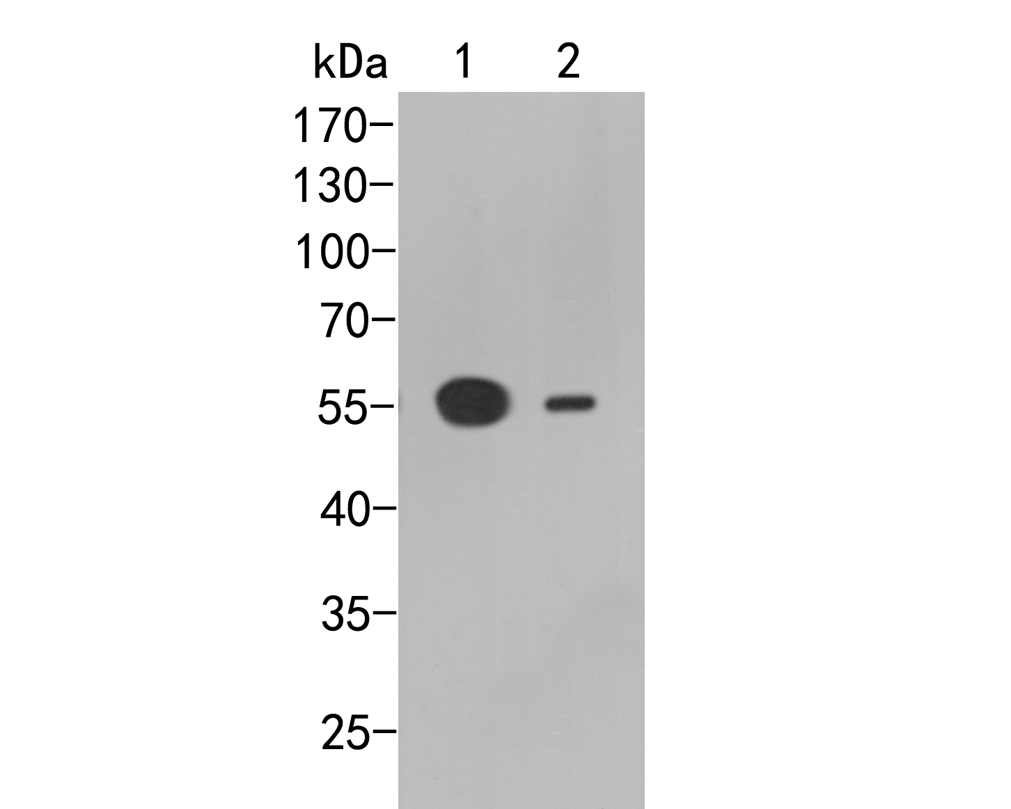 Western blot analysis of FCGRT on different lysates. Proteins were transferred to a PVDF membrane and blocked with 5% BSA in PBS for 1 hour at room temperature. The primary antibody (ER2001-44, 1/500) was used in 5% BSA at room temperature for 2 hours. Goat Anti-Rabbit IgG - HRP Secondary Antibody (HA1001) at 1:5,000 dilution was used for 1 hour at room temperature.<br /> Positive control: <br /> Lane 1: Human brain tissue lysate<br /> Lane 2: HepG2 cell lysate