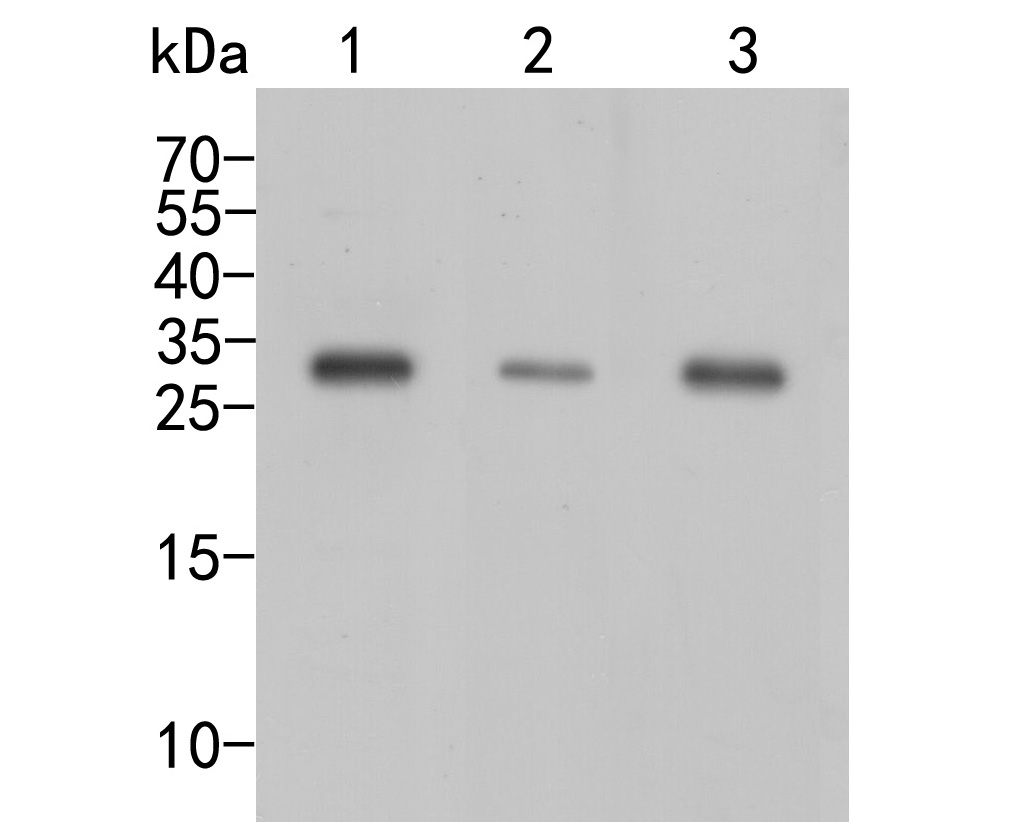 Western blot analysis of CBR1 on different lysates. Proteins were transferred to a PVDF membrane and blocked with 5% BSA in PBS for 1 hour at room temperature. The primary antibody (ER2001-45, 1/1000) was used in 5% BSA at room temperature for 2 hours. Goat Anti-Rabbit IgG - HRP Secondary Antibody (HA1001) at 1:5,000 dilution was used for 1 hour at room temperature.<br />  Positive control: <br />  Lane 1: SKBR-3 cell lysate<br />  Lane 2: A549 cell lysate<br />  Lane 3: Siha cell lysate