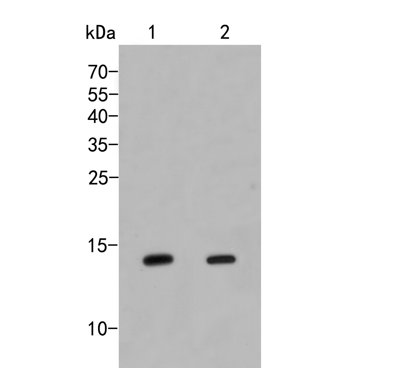 Western blot analysis of IFITM1 on different lysates. Proteins were transferred to a PVDF membrane and blocked with 5% BSA in PBS for 1 hour at room temperature. The primary antibody (ER2001-46, 1/500) was used in 5% BSA at room temperature for 2 hours. Goat Anti-Rabbit IgG - HRP Secondary Antibody (HA1001) at 1:5,000 dilution was used for 1 hour at room temperature.<br />  Positive control:<br />  Lane 1: A172 cell lysate<br />  Lane 2: K562 cell lysate