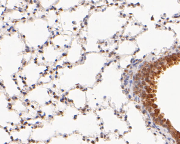 Immunohistochemical analysis of paraffin-embedded mouse lung tissue using anti-Foxk2 antibody. The section was pre-treated using heat mediated antigen retrieval with sodium citrate buffer (pH 6.0) for 20 minutes. The tissues were blocked in 5% BSA for 30 minutes at room temperature, washed with ddH2O and PBS, and then probed with the primary antibody (ER2001-47, 1/200) for 30 minutes at room temperature. The detection was performed using an HRP conjugated compact polymer system. DAB was used as the chromogen. Tissues were counterstained with hematoxylin and mounted with DPX.