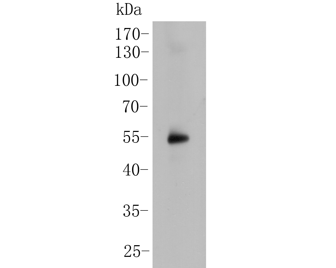 Western blot analysis of SSB on human lung tissue lysate. Proteins were transferred to a PVDF membrane and blocked with 5% BSA in PBS for 1 hour at room temperature. The primary antibody (ER2001-50, 1/500) was used in 5% BSA at room temperature for 2 hours. Goat Anti-Rabbit IgG - HRP Secondary Antibody (HA1001) at 1:5,000 dilution was used for 1 hour at room temperature.