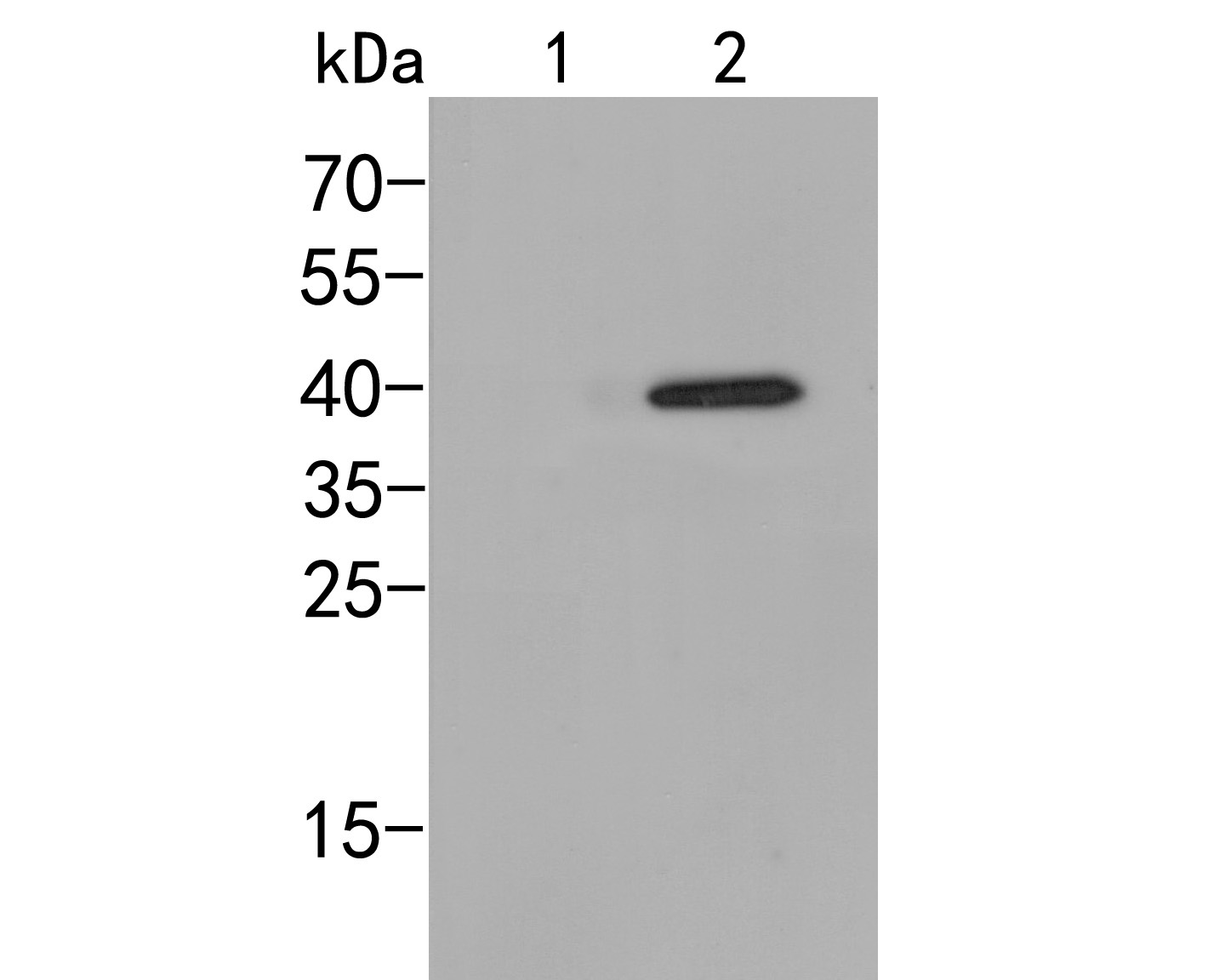 Western blot analysis of p38  (phospho T180) on different lysates. Proteins were transferred to a PVDF membrane and blocked with 5% BSA in PBS for 1 hour at room temperature. The primary antibody (ER2001-51, 1/500) was used in 5% BSA at room temperature for 2 hours. Goat Anti-Rabbit IgG - HRP Secondary Antibody (HA1001) at 1:5,000 dilution was used for 1 hour at room temperature.<br /> Positive control: <br /> Lane 1: 293 cell lysate, untreated with UV<br /> Lane 2: 293 cell lysate, treated with UV for 60 minutes