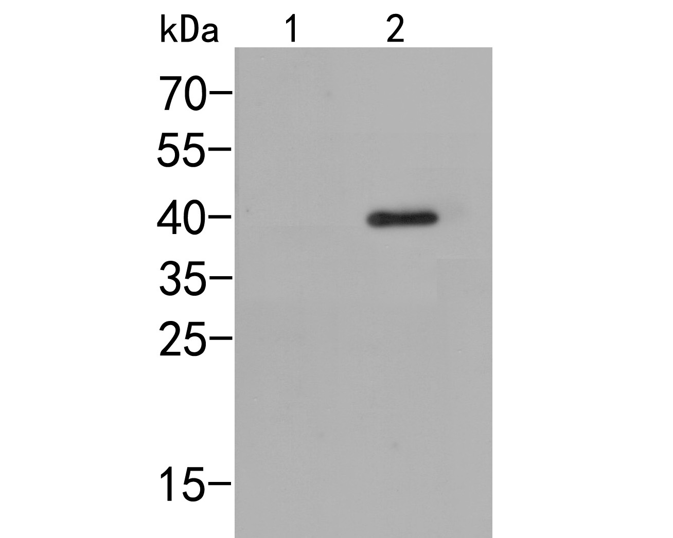 Western blot analysis of p38  (phospho T180) on different lysates. Proteins were transferred to a PVDF membrane and blocked with 5% BSA in PBS for 1 hour at room temperature. The primary antibody (ER2001-51, 1/500) was used in 5% BSA at room temperature for 2 hours. Goat Anti-Rabbit IgG - HRP Secondary Antibody (HA1001) at 1:5,000 dilution was used for 1 hour at room temperature.<br /> Positive control: <br /> Lane 1: A431 cell lysate, untreated with UV<br /> Lane 2: A431 cell lysate, treated with UV for 40 minutes