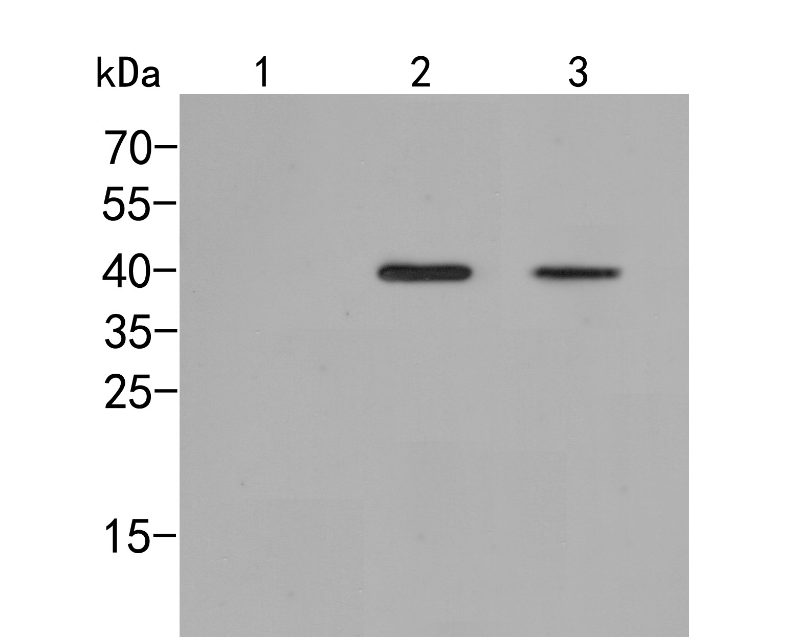 Western blot analysis of p38  (phospho T180) on different lysates. Proteins were transferred to a PVDF membrane and blocked with 5% BSA in PBS for 1 hour at room temperature. The primary antibody (ER2001-51, 1/500) was used in 5% BSA at room temperature for 2 hours. Goat Anti-Rabbit IgG - HRP Secondary Antibody (HA1001) at 1:5,000 dilution was used for 1 hour at room temperature.<br /> Positive control: <br /> Lane 1: Hela cell lysate, untreated<br /> Lane 2: Hela cell lysate, treated with anisomycin at 250 ng/ml for 30 minutes <br /> Lane 3: Hela cell lysate, treated with UV for 40 minutes