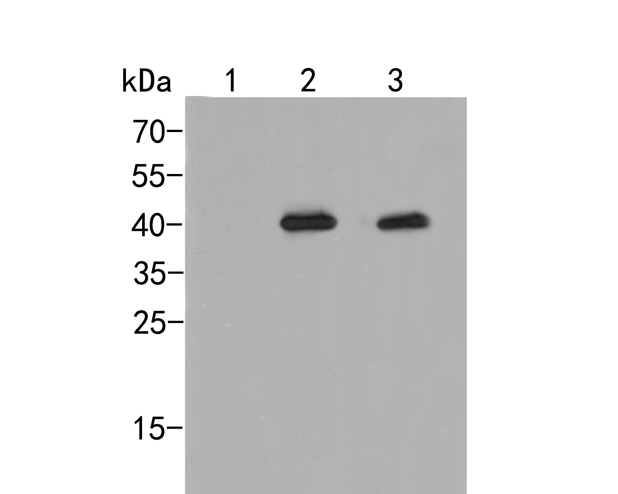 Western blot analysis of P38  (Phospho Thr180 + Tyr182) on different lysates. Proteins were transferred to a PVDF membrane and blocked with 5% BSA in PBS for 1 hour at room temperature. The primary antibody (ER2001-52, 1/1000) was used in 5% BSA at room temperature for 2 hours. Goat Anti-Rabbit IgG - HRP Secondary Antibody (HA1001) at 1:5,000 dilution was used for 1 hour at room temperature.<br /> Positive control: <br /> Lane 1: Hela cell lysate, untreated <br /> Lane 2: Hela cell lysate, treated with UV for 40 minutes<br /> Lane 3: Hela cell lysate, treated with anisomycin at 250 ng/ml for 30 minutes