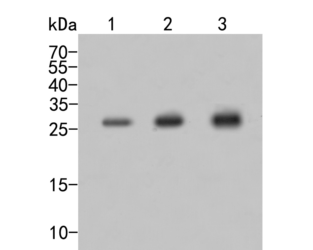 Western blot analysis of eIF-6 on different lysates. Proteins were transferred to a PVDF membrane and blocked with 5% BSA in PBS for 1 hour at room temperature. The primary antibody (ER2001-54, 1/500) was used in 5% BSA at room temperature for 2 hours. Goat Anti-Rabbit IgG - HRP Secondary Antibody (HA1001) at 1:5,000 dilution was used for 1 hour at room temperature.<br /> Positive control: <br /> Lane 1: SHSY5Y cell lysate<br /> Lane 2: A549 cell lysate<br /> Lane 3: HepG2 cell lysate