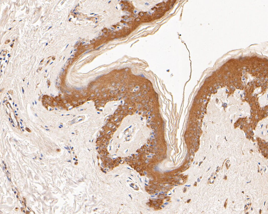 Immunohistochemical analysis of paraffin-embedded human skin tissue using anti-GADD34 antibody. The section was pre-treated using heat mediated antigen retrieval with Tris-EDTA buffer (pH 8.0-8.4) for 20 minutes.The tissues were blocked in 5% BSA for 30 minutes at room temperature, washed with ddH2O and PBS, and then probed with the primary antibody (ER2001-56, 1/200) for 30 minutes at room temperature. The detection was performed using an HRP conjugated compact polymer system. DAB was used as the chromogen. Tissues were counterstained with hematoxylin and mounted with DPX.