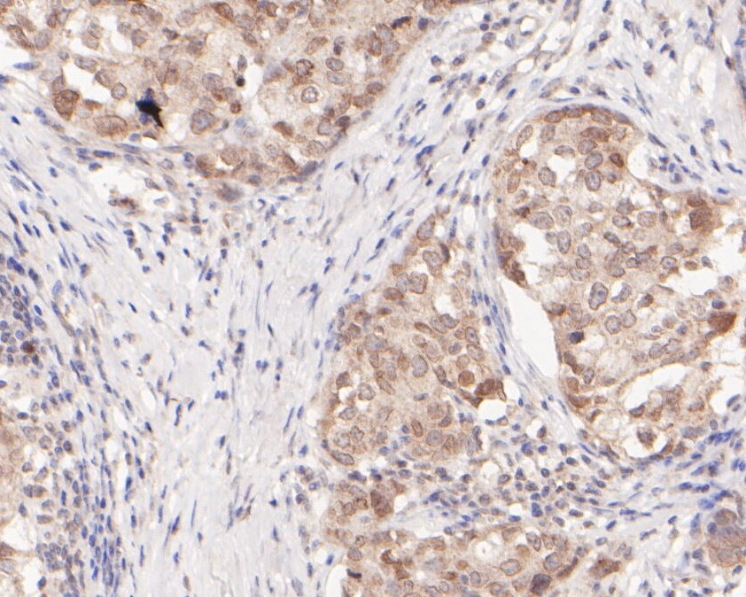 Immunohistochemical analysis of paraffin-embedded human breast carcinoma tissue using anti-Nucleoporin p62 antibody. The section was pre-treated using heat mediated antigen retrieval with sodium citrate buffer (pH 6.0) for 20 minutes. The tissues were blocked in 5% BSA for 30 minutes at room temperature, washed with ddH2O and PBS, and then probed with the primary antibody (ER2001-57, 1/400) for 30 minutes at room temperature. The detection was performed using an HRP conjugated compact polymer system. DAB was used as the chromogen. Tissues were counterstained with hematoxylin and mounted with DPX.
