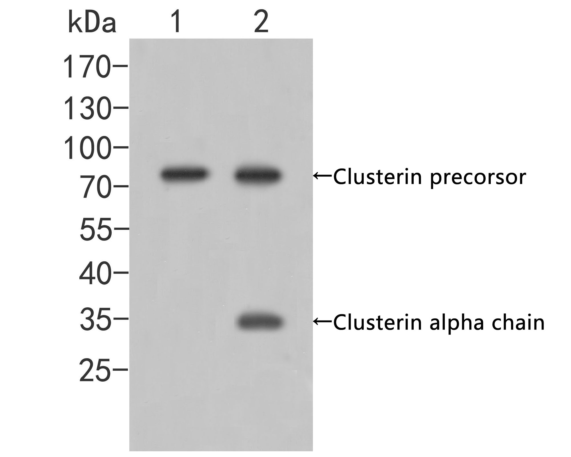 Western blot analysis of Clusterin on different lysates. Proteins were transferred to a PVDF membrane and blocked with 5% BSA in PBS for 1 hour at room temperature. The primary antibody (ER2001-58, 1/500) was used in 5% BSA at room temperature for 2 hours. Goat Anti-Rabbit IgG - HRP Secondary Antibody (HA1001) at 1:5,000 dilution was used for 1 hour at room temperature.<br /> Positive control: <br /> Lane 1: Hela cell lysate<br /> Lane 2: SKBR-3 cell lysate