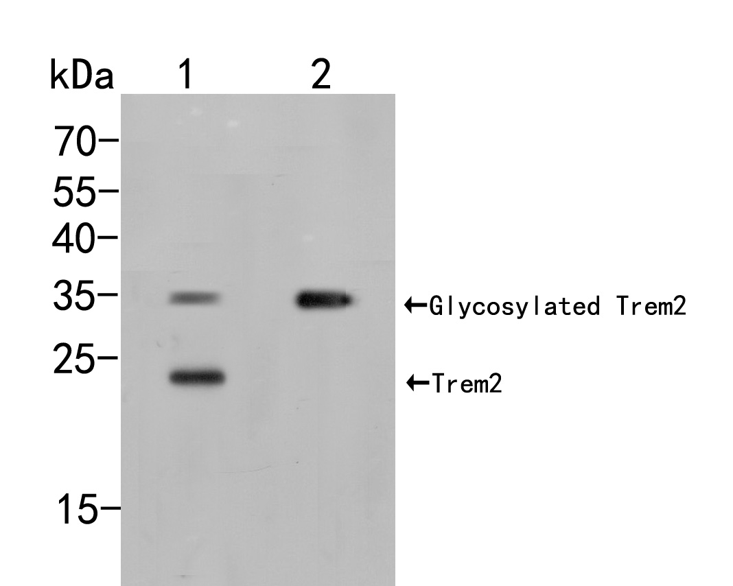 Western blot analysis of Trem2 on different lysates. Proteins were transferred to a PVDF membrane and blocked with 5% BSA in PBS for 1 hour at room temperature. The primary antibody (ER2001-59, 1/500) was used in 5% BSA at room temperature for 2 hours. Goat Anti-Rabbit IgG - HRP Secondary Antibody (HA1001) at 1:5,000 dilution was used for 1 hour at room temperature.<br /> Positive control: <br /> Lane 1: THP-1 cell lysate<br /> Lane 2: Rat  bone marrow tissue lysate