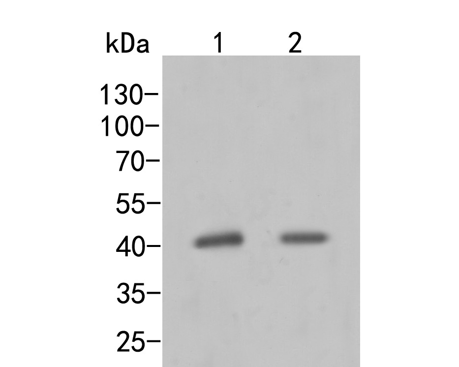 Western blot analysis of MVK on different lysates. Proteins were transferred to a PVDF membrane and blocked with 5% BSA in PBS for 1 hour at room temperature. The primary antibody (ER2001-64, 1/500) was used in 5% BSA at room temperature for 2 hours. Goat Anti-Rabbit IgG - HRP Secondary Antibody (HA1001) at 1:5,000 dilution was used for 1 hour at room temperature.<br /> Positive control: <br /> Lane 1: U937 cell lysate<br /> Lane 2: SKBR-3 cell lysate
