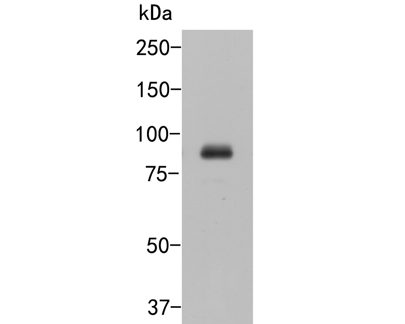 Western blot analysis of Cullin 4B on HUVEC cell lysates. Proteins were transferred to a PVDF membrane and blocked with 5% BSA in PBS for 1 hour at room temperature. The primary antibody (ER2001-65, 1/500) was used in 5% BSA at room temperature for 2 hours. Goat Anti-Rabbit IgG - HRP Secondary Antibody (HA1001) at 1:5,000 dilution was used for 1 hour at room temperature.