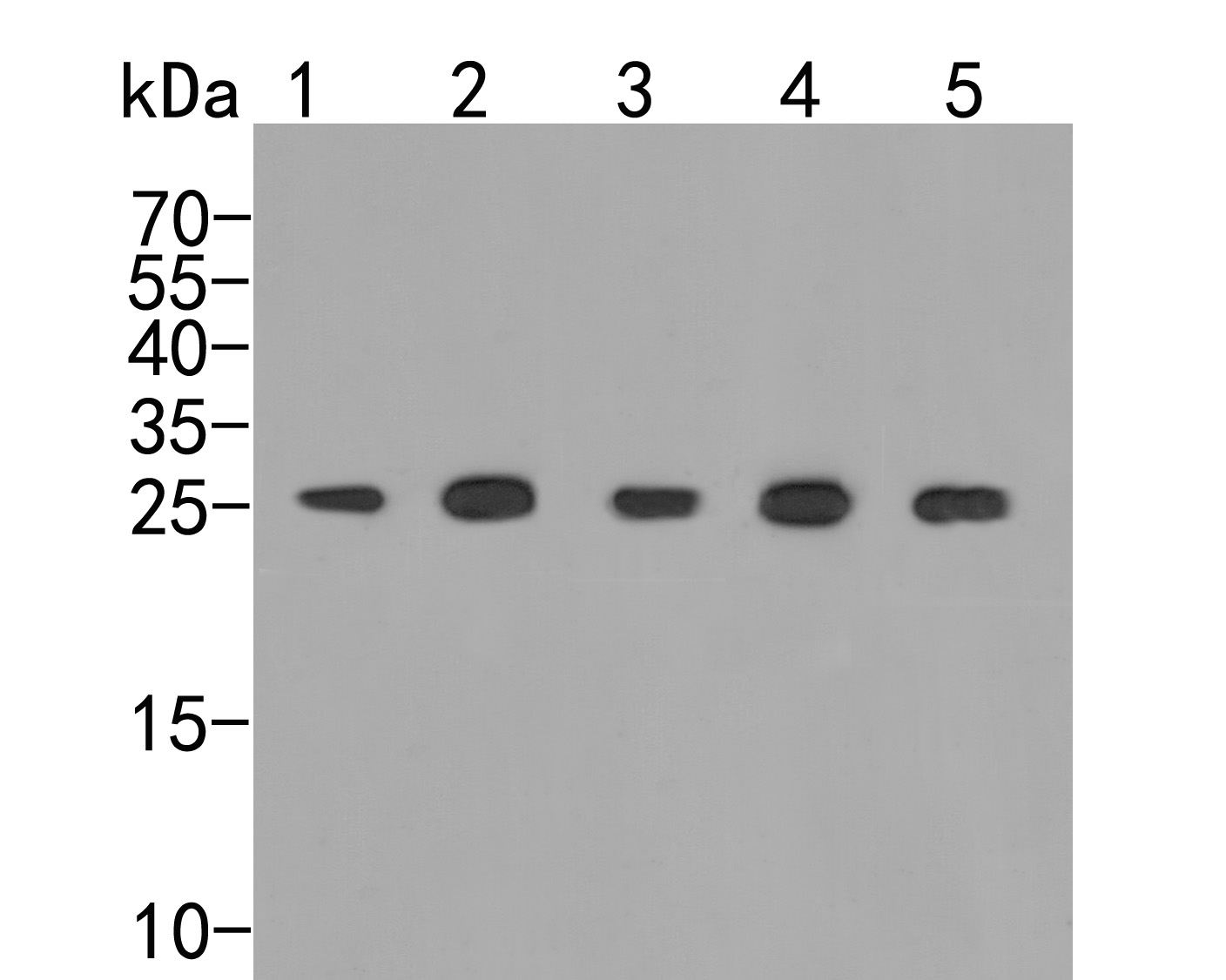 Western blot analysis of PSMA5 on different lysates. Proteins were transferred to a PVDF membrane and blocked with 5% BSA in PBS for 1 hour at room temperature. The primary antibody (ER2001-68, 1/500) was used in 5% BSA at room temperature for 2 hours. Goat Anti-Rabbit IgG - HRP Secondary Antibody (HA1001) at 1:5,000 dilution was used for 1 hour at room temperature.<br />  Positive control: <br />  Lane 1: Hela cell lysate<br />  Lane 2: 293 cell lysate<br />  Lane 3: Mouse cerebellum tissue lysate<br />  Lane 4: Mouse liver tissue lysate<br />  Lane 5: Rat liver tissue lysate