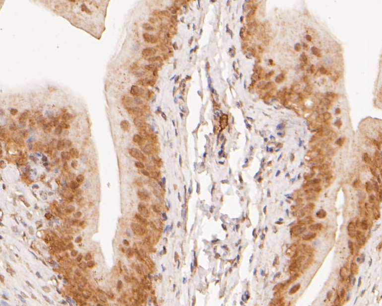 Immunohistochemical analysis of paraffin-embedded rat bladder tissue using anti-KIFAP3 antibody. The section was pre-treated using heat mediated antigen retrieval with sodium citrate buffer (pH 6.0) for 20 minutes. The tissues were blocked in 5% BSA for 30 minutes at room temperature, washed with ddH2O and PBS, and then probed with the primary antibody (ER2001-69, 1/400) for 30 minutes at room temperature. The detection was performed using an HRP conjugated compact polymer system. DAB was used as the chromogen. Tissues were counterstained with hematoxylin and mounted with DPX.