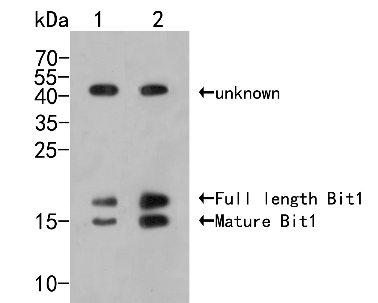 Western blot analysis of Bit1 on different lysates. Proteins were transferred to a PVDF membrane and blocked with 5% BSA in PBS for 1 hour at room temperature. The primary antibody (ER2001-71, 1/500) was used in 5% BSA at room temperature for 2 hours. Goat Anti-Rabbit IgG - HRP Secondary Antibody (HA1001) at 1:5,000 dilution was used for 1 hour at room temperature.<br /> Positive control: <br /> Lane 1: PC-3M cell lysate<br /> Lane 2: MCF-7 cell lysate