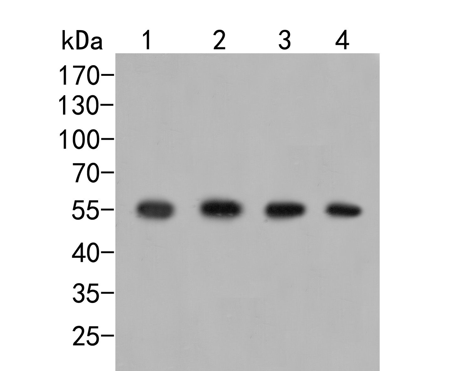 Western blot analysis of GRK1 on different lysates. Proteins were transferred to a PVDF membrane and blocked with 5% BSA in PBS for 1 hour at room temperature. The primary antibody (ER2001-72, 1/500) was used in 5% BSA at room temperature for 2 hours. Goat Anti-Rabbit IgG - HRP Secondary Antibody (HA1001) at 1:5,000 dilution was used for 1 hour at room temperature.<br />  Positive control: <br />  Lane 1: Mouse marrow tissue lysate<br />  Lane 2: HUVEC cell lysate<br />  Lane 3: 293 cell lysate<br />  Lane 4: Rat marrow tissue lysate
