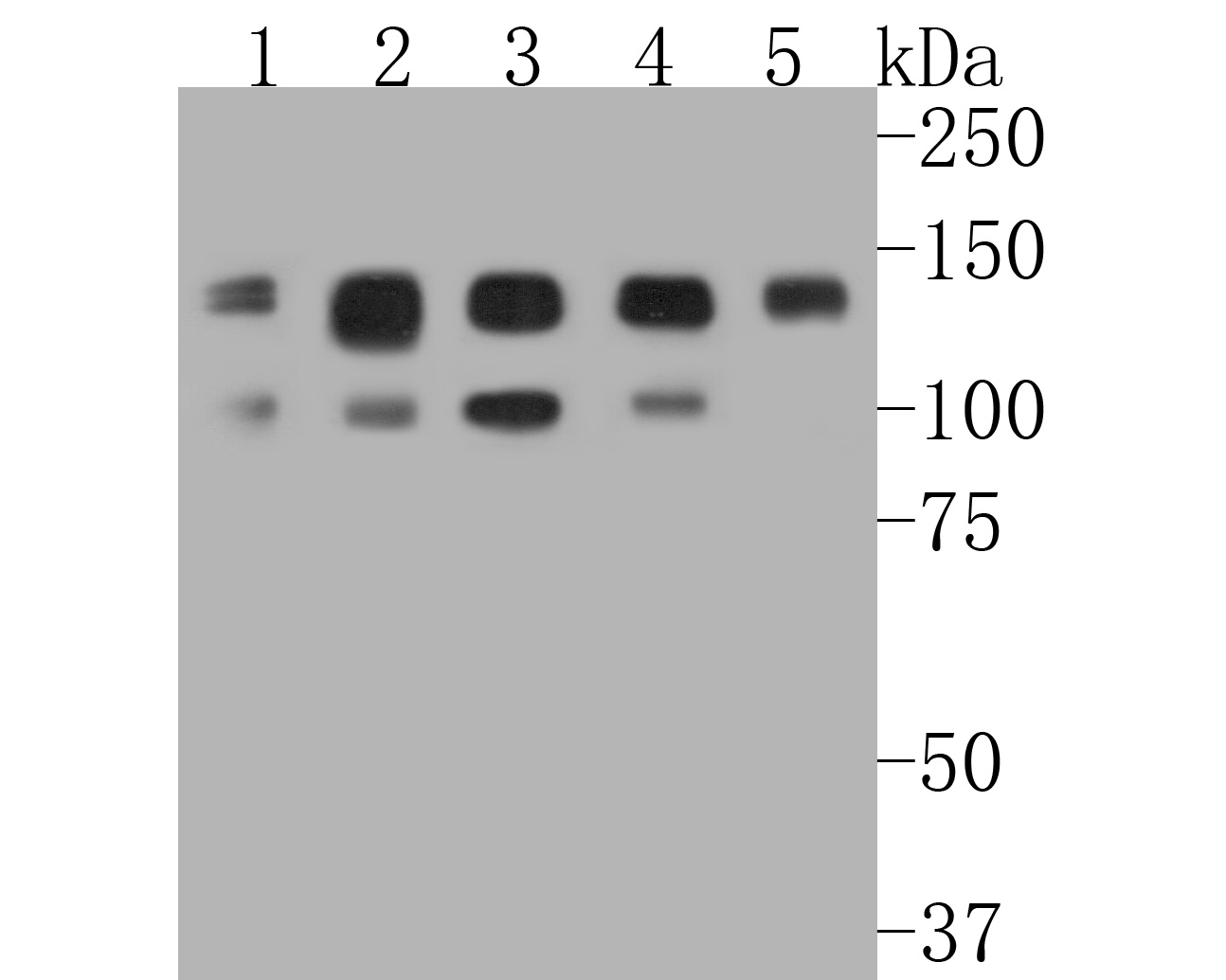 Western blot analysis of TFII I on different lysates. Proteins were transferred to a PVDF membrane and blocked with 5% BSA in PBS for 1 hour at room temperature. The primary antibody (ET7111-10, 1/1,000) was used in 5% BSA at room temperature for 2 hours. Goat Anti-Rabbit IgG - HRP Secondary Antibody (HA1001) at 1:5,000 dilution was used for 1 hour at room temperature.<br /> Positive control: <br /> Lane 1: A431 cell lysate<br /> Lane 2: Jurkat cell lysate<br /> Lane 3: Hela cell lysate<br /> Lane 4: MCF-7 cell lysate<br /> Lane 5: PC-12 cell lysate