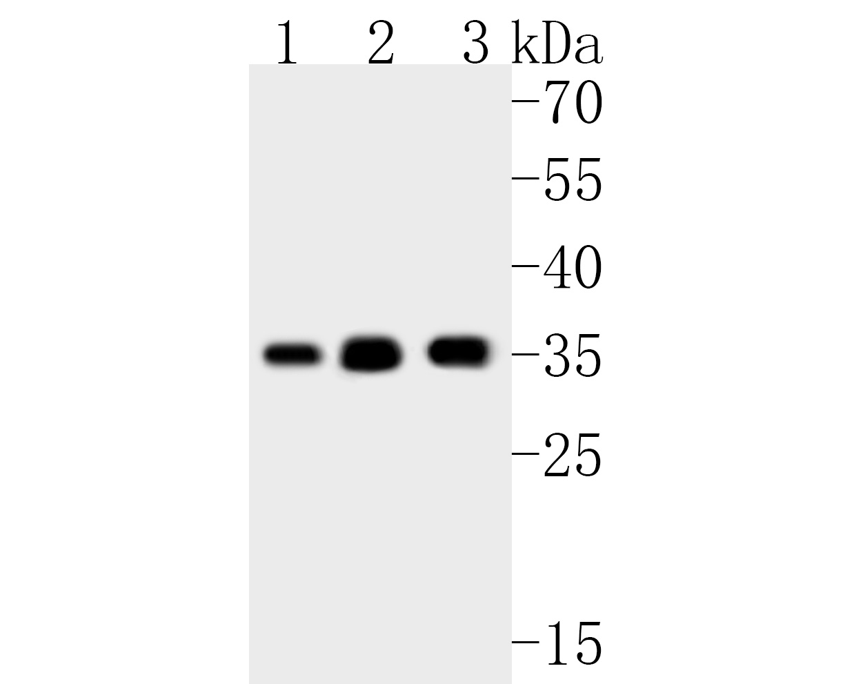 Western blot analysis of RRP42 on different lysates. Proteins were transferred to a PVDF membrane and blocked with 5% BSA in PBS for 1 hour at room temperature. The primary antibody (ET7111-13, 1/1,000) was used in 5% BSA at room temperature for 2 hours. Goat Anti-Rabbit IgG - HRP Secondary Antibody (HA1001) at 1:5,000 dilution was used for 1 hour at room temperature.<br /> Positive control: <br /> Lane 1: K562 cell lysate<br /> Lane 2: Jurkat cell lysate<br /> Lane 3: U937 cell lysate