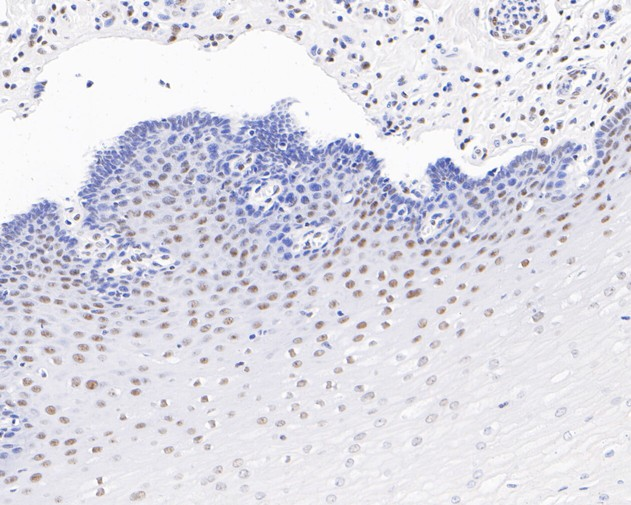 Immunohistochemical analysis of paraffin-embedded human esophagus tissue using anti-RRP42 antibody. The section was pre-treated using heat mediated antigen retrieval with sodium citrate buffer (pH 6.0) for 20 minutes. The tissues were blocked in 5% BSA for 30 minutes at room temperature, washed with ddH2O and PBS, and then probed with the primary antibody (ET7111-13, 1/200)  for 30 minutes at room temperature. The detection was performed using an HRP conjugated compact polymer system. DAB was used as the chromogen. Tissues were counterstained with hematoxylin and mounted with DPX.