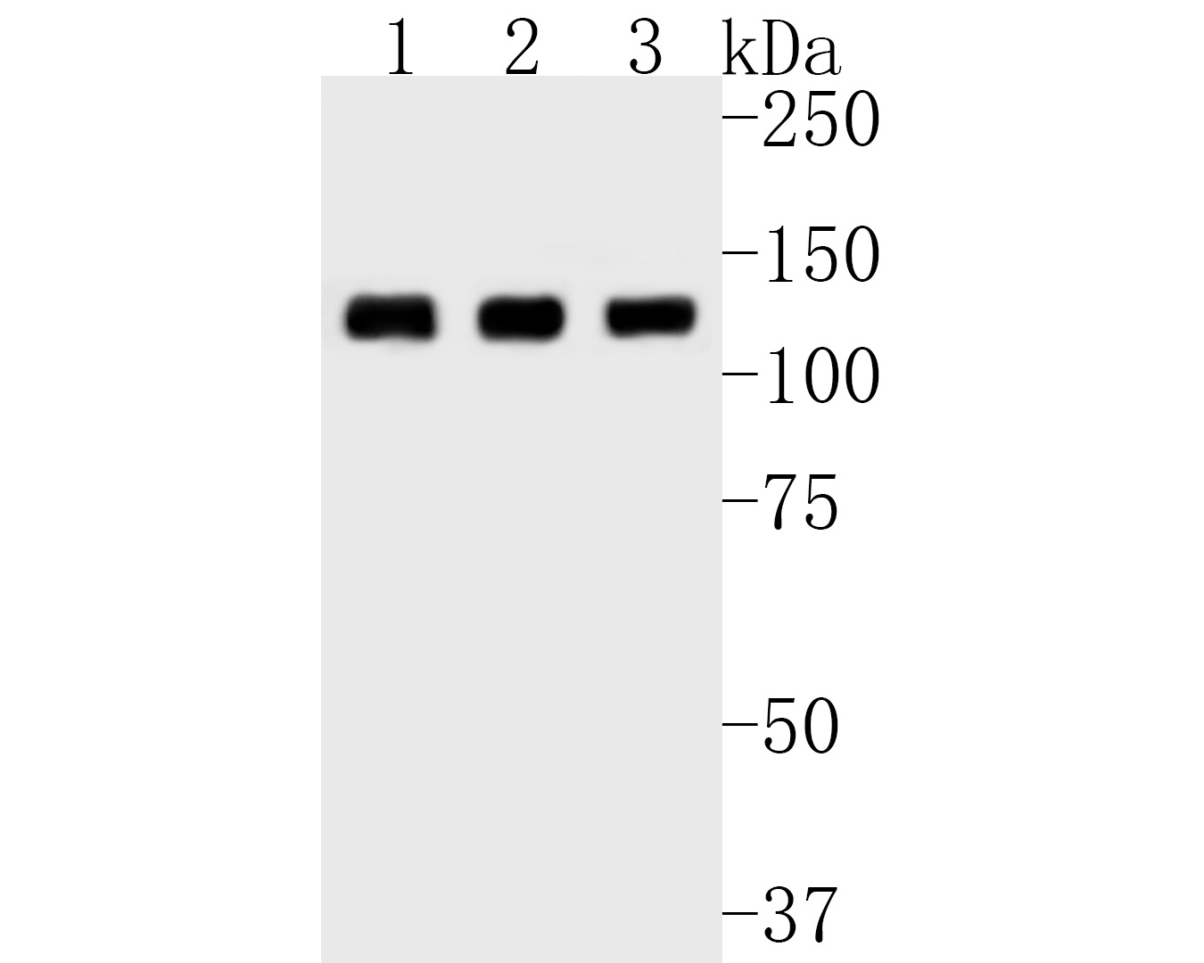 Western blot analysis of CC2D1A on different lysates. Proteins were transferred to a PVDF membrane and blocked with 5% BSA in PBS for 1 hour at room temperature. The primary antibody (ET7111-22, 1/1,000) was used in 5% BSA at room temperature for 2 hours. Goat Anti-Rabbit IgG - HRP Secondary Antibody (HA1001) at 1:5,000 dilution was used for 1 hour at room temperature.<br /> Positive control: <br /> Lane 1: MCF-7 cell lysate<br /> Lane 2: A431 cell lysate<br /> Lane 3: PC-12 cell lysate