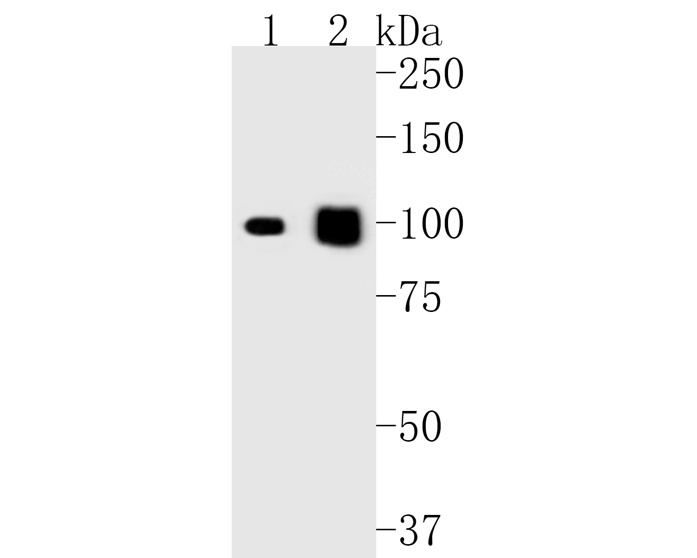 Western blot analysis of Desmocollin 3 on different lysates. Proteins were transferred to a PVDF membrane and blocked with 5% BSA in PBS for 1 hour at room temperature. The primary antibody (ET7111-26, 1/1,000) was used in 5% BSA at room temperature for 2 hours. Goat Anti-Rabbit IgG - HRP Secondary Antibody (HA1001) at 1:5,000 dilution was used for 1 hour at room temperature.<br /> Positive control: <br /> Lane 1: rat skin tissue lysate<br /> Lane 2: A431 cell lysate