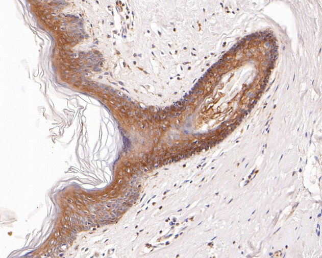 Immunohistochemical analysis of paraffin-embedded human skin tissue using anti-Desmocollin 3 antibody. The section was pre-treated using heat mediated antigen retrieval with Tris-EDTA buffer (pH 8.0-8.4) for 20 minutes.The tissues were blocked in 5% BSA for 30 minutes at room temperature, washed with ddH2O and PBS, and then probed with the primary antibody (ET7111-26, 1/200) for 30 minutes at room temperature. The detection was performed using an HRP conjugated compact polymer system. DAB was used as the chromogen. Tissues were counterstained with hematoxylin and mounted with DPX.