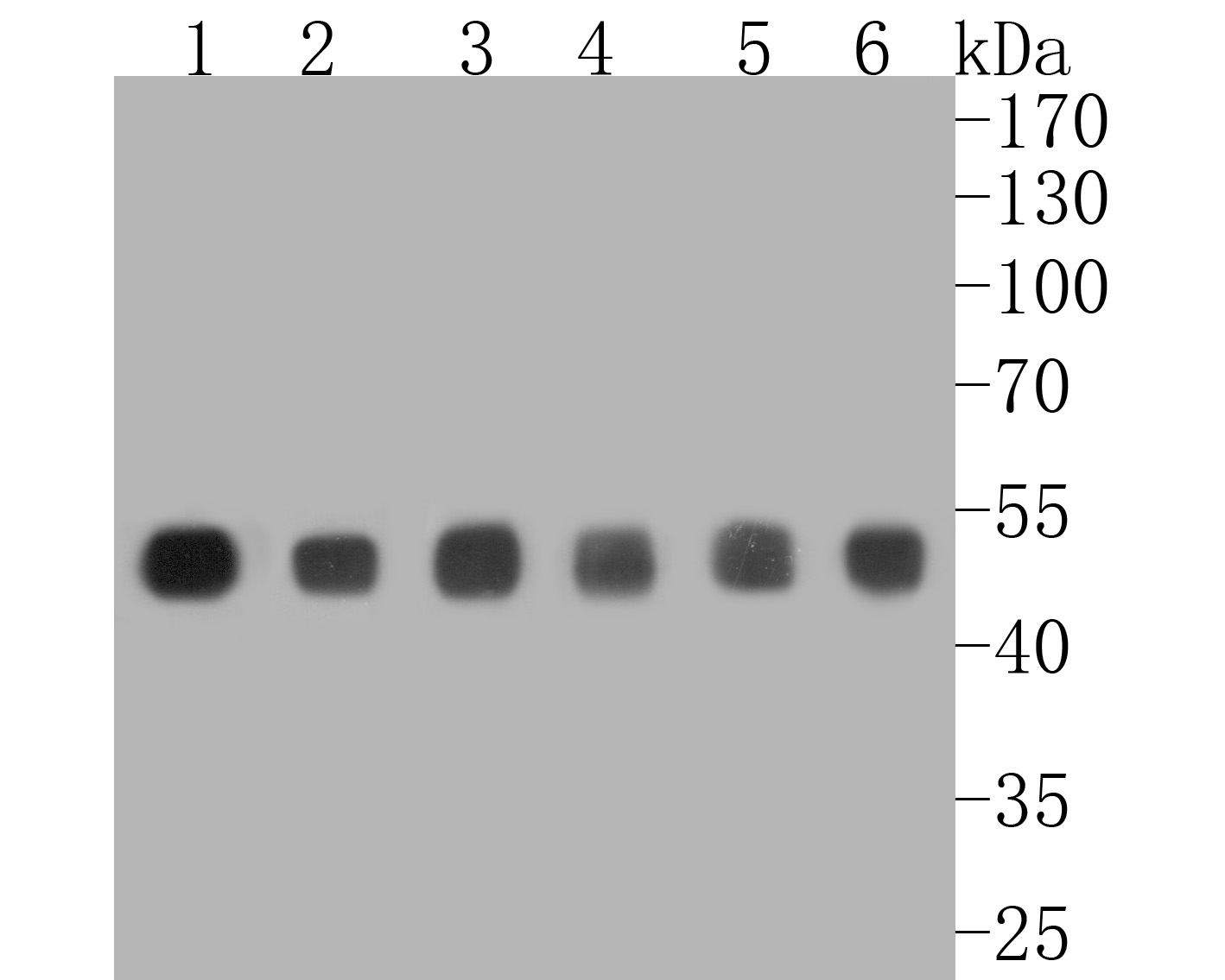 Western blot analysis of CTBP2 on different lysates. Proteins were transferred to a PVDF membrane and blocked with 5% BSA in PBS for 1 hour at room temperature. The primary antibody (ET7111-27, 1/1,000) was used in 5% BSA at room temperature for 2 hours. Goat Anti-Rabbit IgG - HRP Secondary Antibody (HA1001) at 1:5,000 dilution was used for 1 hour at room temperature.<br /> Positive control: <br /> Lane 1: rat testis tissue lysate<br /> Lane 2: Hela cell lysate<br /> Lane 3: NIH/3T3 cell lysate<br /> Lane 4: rat brain tissue lysate<br /> Lane 5: MCF-7 cell lysate<br /> Lane 6: A431 cell lysate