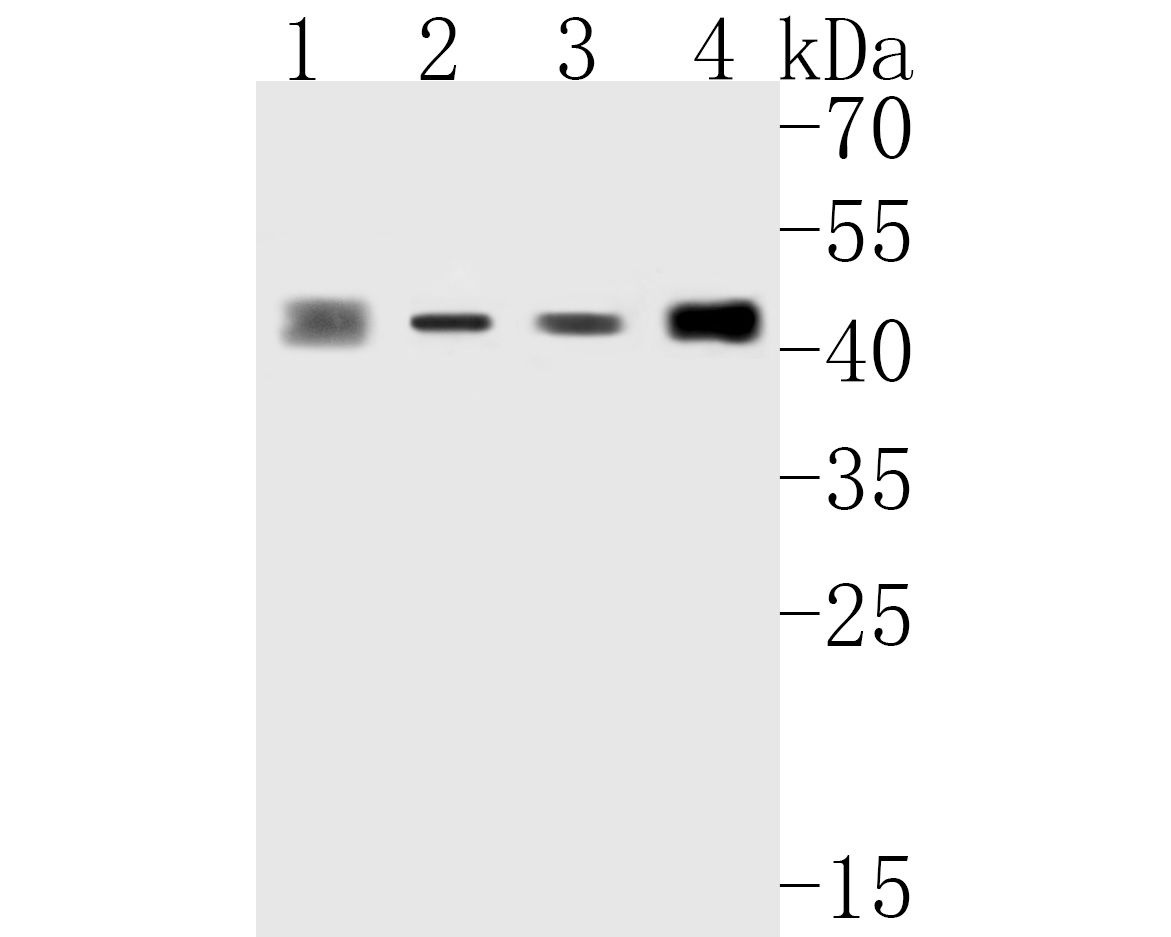 Western blot analysis of ALKBH1 on different lysates. Proteins were transferred to a PVDF membrane and blocked with 5% BSA in PBS for 1 hour at room temperature. The primary antibody (ET7111-31, 1/1,000) was used in 5% BSA at room temperature for 2 hours. Goat Anti-Rabbit IgG - HRP Secondary Antibody (HA1001) at 1:5,000 dilution was used for 1 hour at room temperature.<br /> Positive control: <br /> Lane 1: human placenta tissue lysate<br /> Lane 2: MCF-7 cell lysate<br /> Lane 2: Daudi cell lysate<br /> Lane 2: A549 cell lysate