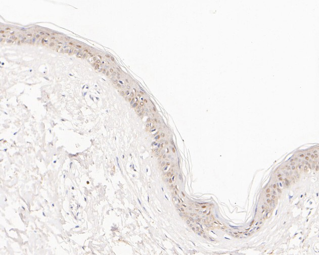 Immunohistochemical analysis of paraffin-embedded human skin tissue using anti-ALKBH1 antibody. The section was pre-treated using heat mediated antigen retrieval with sodium citrate buffer (pH 6.0) for 20 minutes. The tissues were blocked in 5% BSA for 30 minutes at room temperature, washed with ddH2O and PBS, and then probed with the primary antibody (ET7111-31, 1/50)  for 30 minutes at room temperature. The detection was performed using an HRP conjugated compact polymer system. DAB was used as the chromogen. Tissues were counterstained with hematoxylin and mounted with DPX.