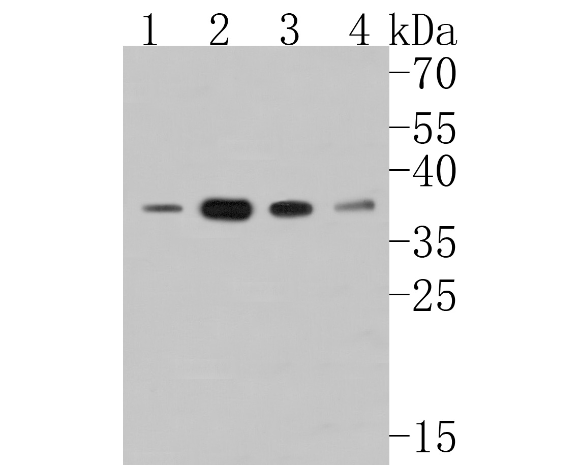 Western blot analysis of HDGF on different lysates. Proteins were transferred to a PVDF membrane and blocked with 5% BSA in PBS for 1 hour at room temperature. The primary antibody (ET7111-42, 1/500) was used in 5% BSA at room temperature for 2 hours. Goat Anti-Rabbit IgG - HRP Secondary Antibody (HA1001) at 1:5,000 dilution was used for 1 hour at room temperature.<br /> Positive control: <br /> Lane 1: Rat cerebellum tissue lysate<br /> Lane 2: SK-Br-3 cell lysate<br /> Lane 3: A549 cell lysate<br /> Lane 4: Mouse cerebellum tissue lysate